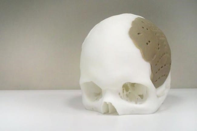 Implant czaszki [8]