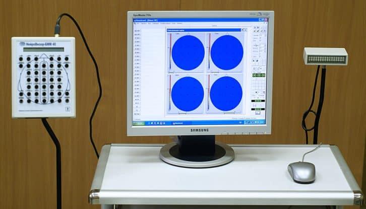 Przykładowe urządzenie do badań EEG. Юрий Петрович Маслобоев / Yury Petrovich Masloboev [CCBYSA3.0], via Wikimedia Commons